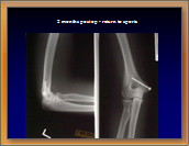 Figure5 Medial Epicondyle Avulsion Fracture